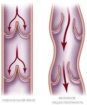 Комплексная программа лечения хронической венозной недостаточности