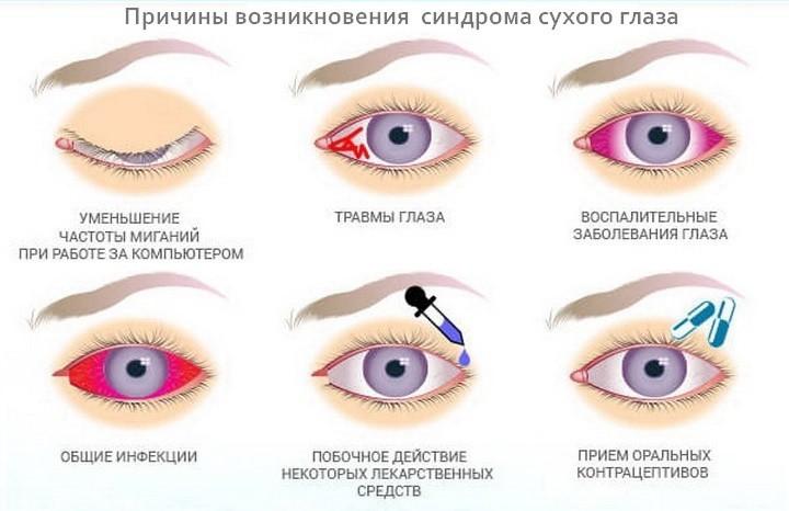 причины возникновения синдрома сухого глаза